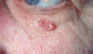 Basalcellekræft er en for hudkræft (her ses et basocellulært carcinom)