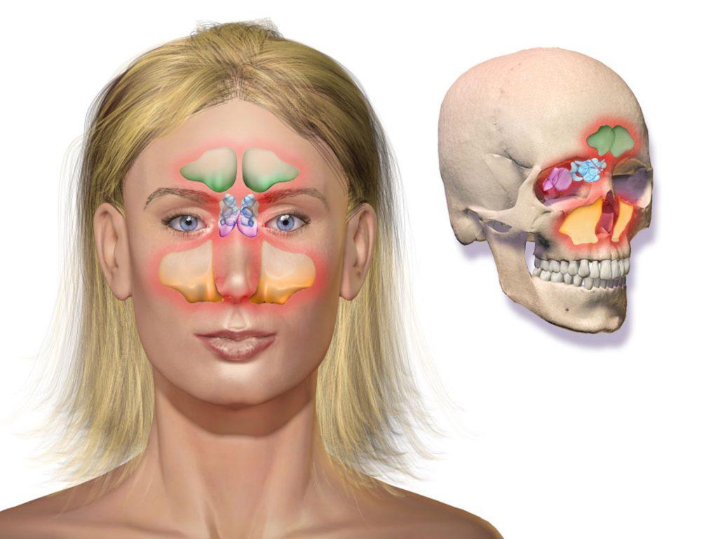 Bihulebetændelse er det samme som pandehulebetændelse og kæbehulebetændelse