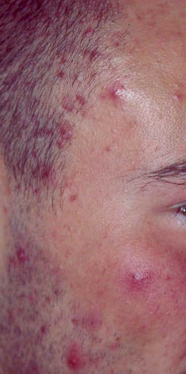 Bumser (Akne) - Oversigt over behandlingsmuligheder