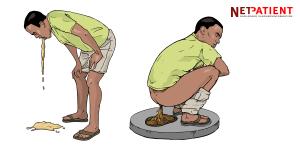 opkastning og diarre