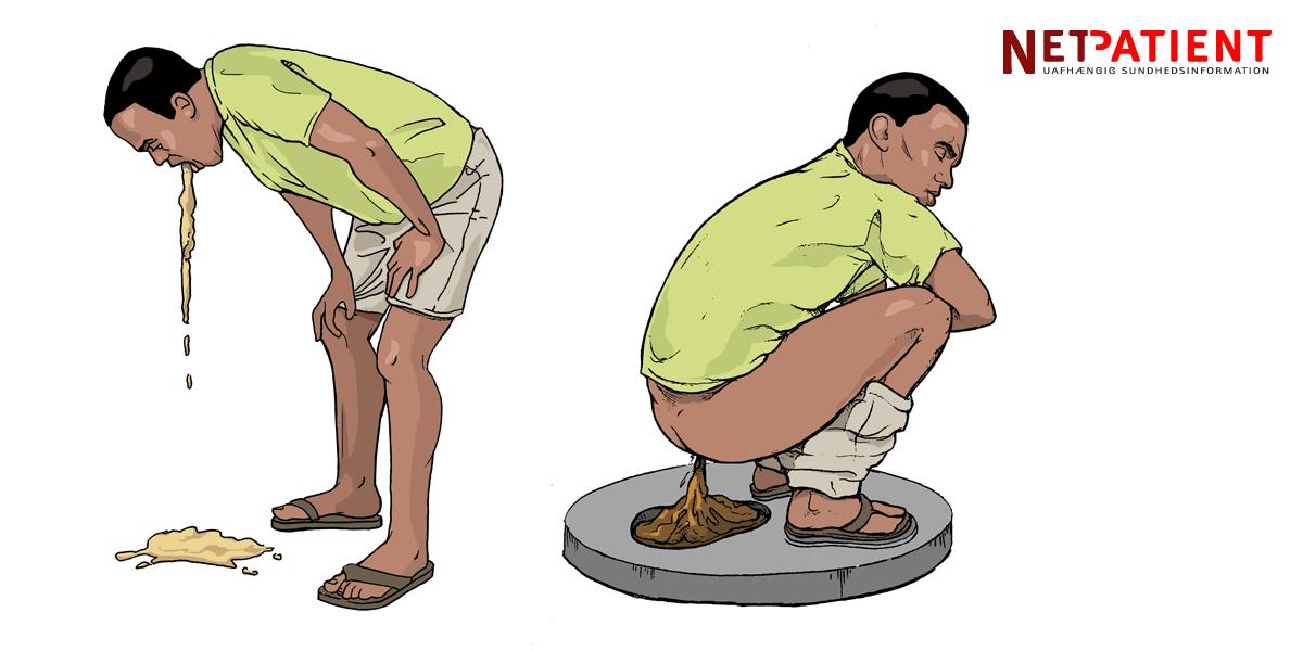 opkast og diarre