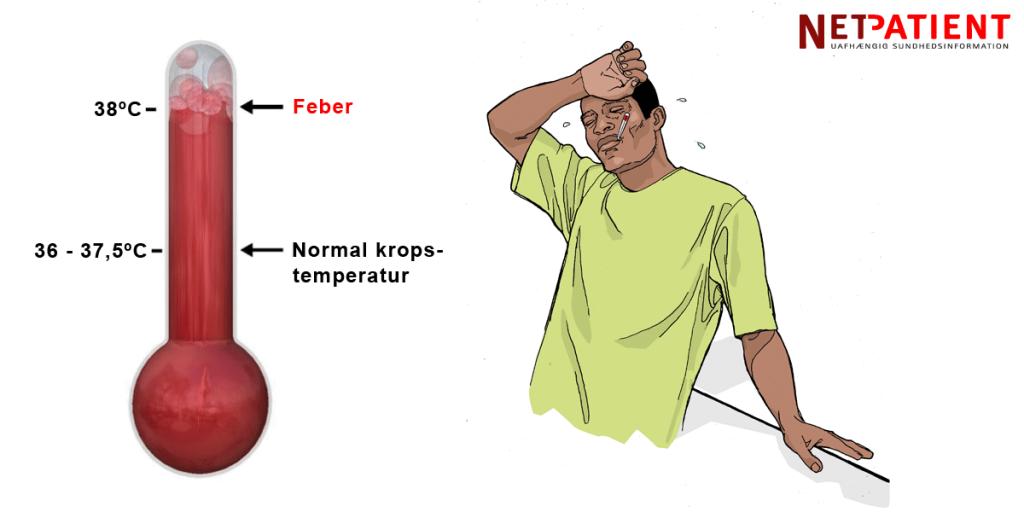 Feber er, når kropstemperaturen stiger til 38 grader eller derover