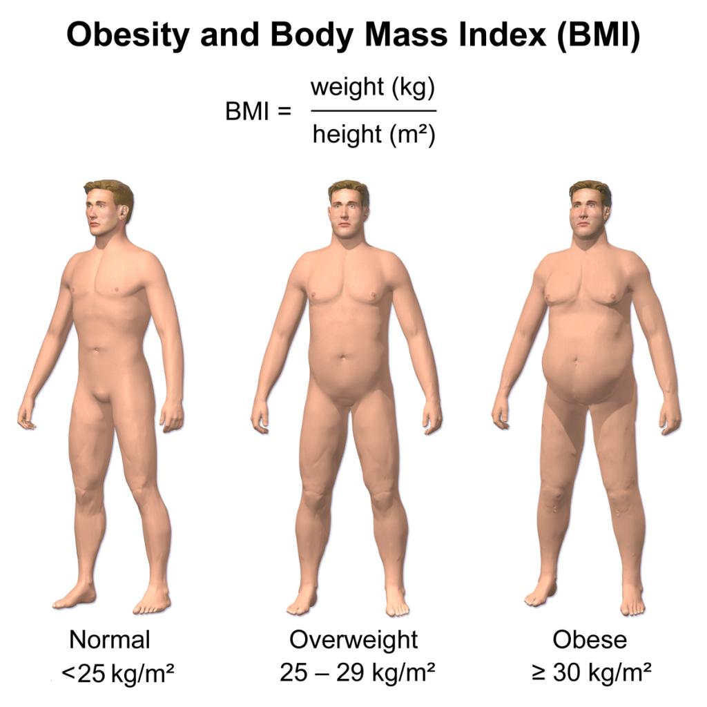 Overvægt/fedme kaldes adipositas på latin og er et helbredsmæssigt problem, der vinder mere og mere frem
