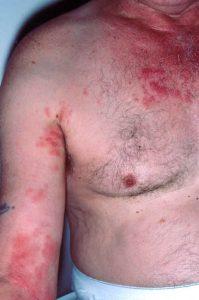 Helvedesild hos en mandlig patient