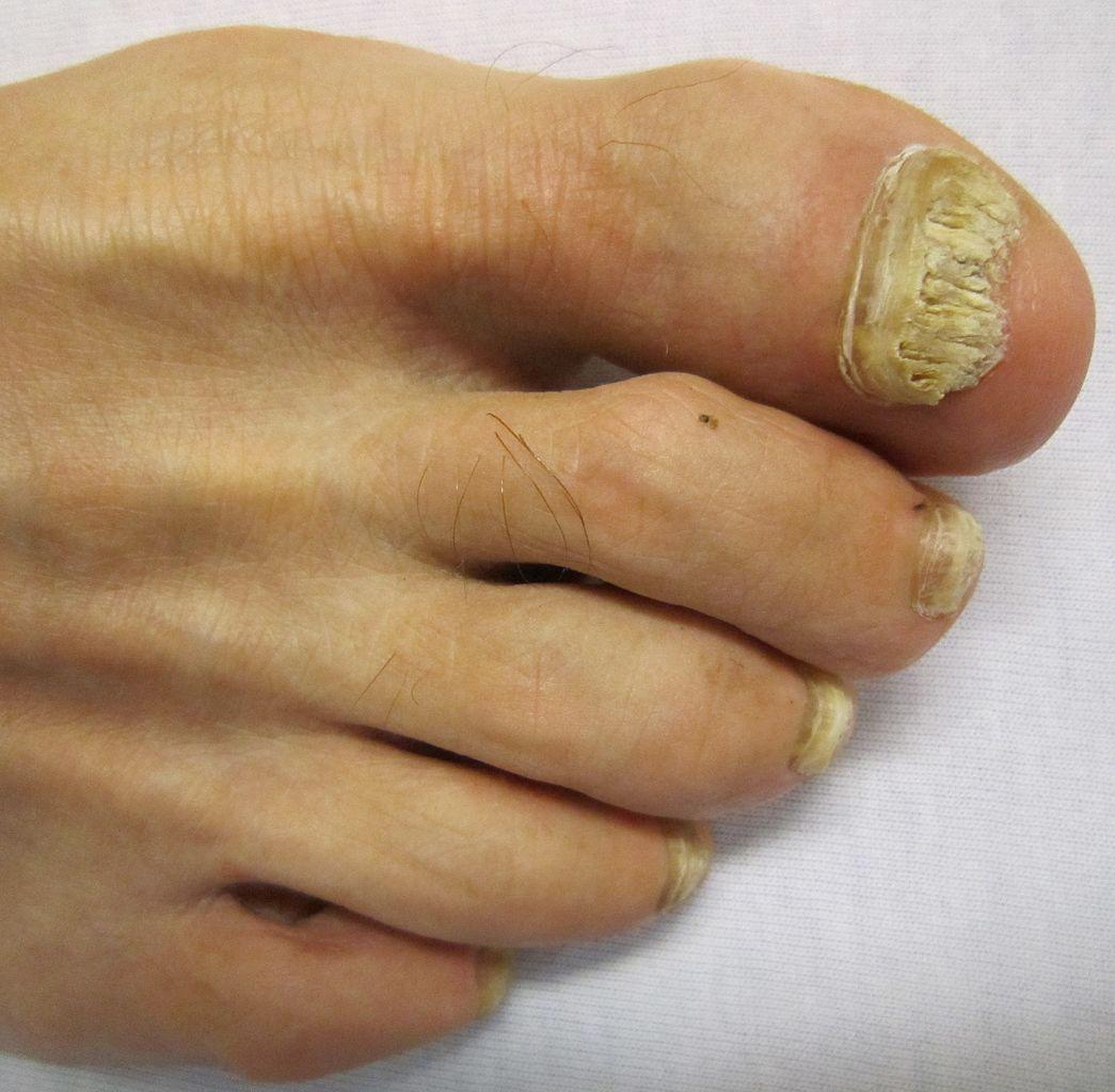 svamp i neglene behandling