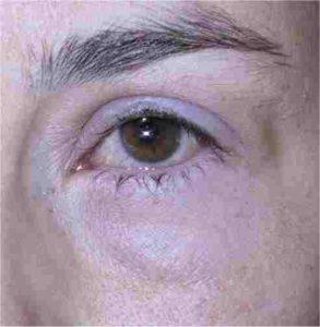 Øjenbetændelse med rødme i øjet