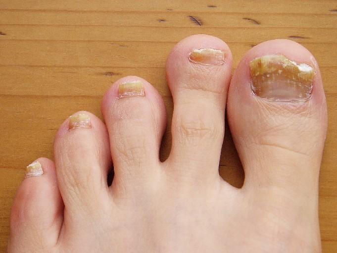svamp i tånegle