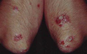 Psoriasis plaques (på albuerne)