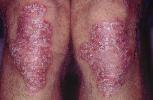 Psoriasis på knæene