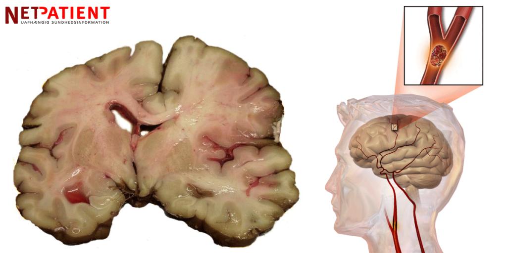 Apopleksi (slagtilfælde) er et udtryk, der dækker over hjerneblødninger samt blodpropper i hjernen
