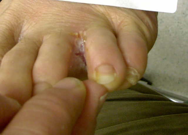 svamp på fødderne